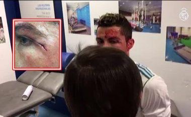 Publikohet video teksa Ronaldo mjekohej nga lëndimi në zhveshtore, qarja ishte shumë afër syrit (Foto)