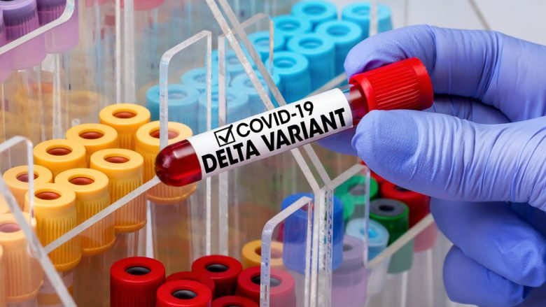 Regjistrohen 28 viktima dhe 557 raste të reja me coronavirus në Maqedoni